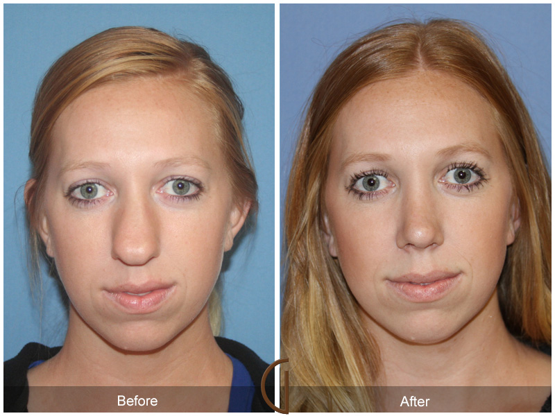 Orange County teenage rhinoplasty patient in Newport Beach by Facial Plastic Surgeon Dr. Kevin Sadati. Nasel tip rhinoplasty
