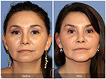 Orange County Facial Plastic Surgeon Facial Fat Grafting Surgery Patient Number #1