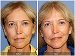 Orange County Facial Plastic Surgeon Facial Fat Grafting Surgery Patient Number #3