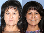Orange County Facial Plastic Surgeon Facial Fat Grafting Surgery Patient Number #4