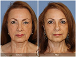 Orange County Facial Plastic Surgeon Facial Fat Grafting Surgery Patient Number #5