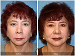 Orange County Facial Plastic Surgeon Facial Fat Grafting Surgery Patient Number #6