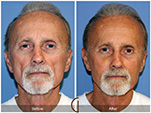 Orange County Facial Plastic Surgeon Facial Fat Grafting Surgery Patient Number #7