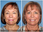 Orange County Facial Plastic Surgeon Facial Fat Grafting Surgery Patient Number #8