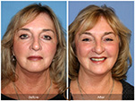 Orange County Facial Plastic Surgeon Facial Fat Grafting Surgery Patient Number #9