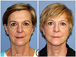 Orange County Facial Plastic Surgeon Facial Fat Grafting Surgery Patient Number #10