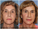 Orange County Facial Plastic Surgeon Facial Fat Grafting Surgery Patient Number #11