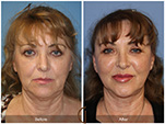 Orange County Facial Plastic Surgeon Facial Fat Grafting Surgery Patient Number #12