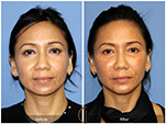 Orange County Facial Plastic Surgeon Facial Fat Grafting Surgery Patient Number #13