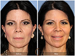 Orange County Facial Plastic Surgeon Facial Fat Grafting Surgery Patient Number #14