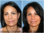 Orange County Facial Plastic Surgeon Facial Fat Grafting Surgery Patient Number #15