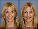 Orange County Facial Plastic Surgeon Facial Fat Grafting Surgery Patient Number #16