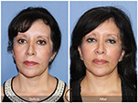 Orange County Facial Plastic Surgeon Facial Fat Grafting Surgery Patient Number #17
