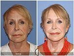 Orange County Facial Plastic Surgeon Facial Fat Grafting Surgery Patient Number #18