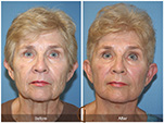 Orange County Facial Plastic Surgeon Facial Fat Grafting Surgery Patient Number #19