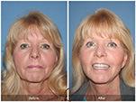 Orange County Facial Plastic Surgeon Facial Fat Grafting Surgery Patient Number #21