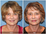 Orange County Facial Plastic Surgeon Facial Fat Grafting Surgery Patient Number #22