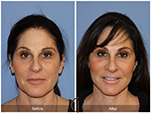 Orange County Facial Plastic Surgeon Facial Fat Grafting Surgery Patient Number #24