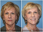 Orange County Facial Plastic Surgeon Facial Fat Grafting Surgery Patient Number #25