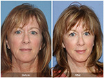 Orange County Facial Plastic Surgeon Facial Fat Grafting Surgery Patient Number #26