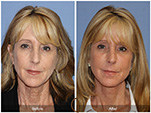 Orange County Facial Plastic Surgeon Facial Fat Grafting Surgery Patient Number #27