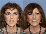 Orange County Facial Plastic Surgeon Facial Fat Grafting Surgery Patient Number #28