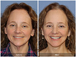 Orange County Facial Plastic Surgeon Facial Fat Grafting Surgery Patient Number #30
