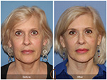Orange County Facial Plastic Surgeon Facial Fat Grafting Surgery Patient Number #31