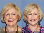 Orange County Facial Plastic Surgeon Facial Fat Grafting Surgery Patient Number #32