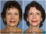 Orange County Facial Plastic Surgeon Facial Fat Grafting Surgery Patient Number #33