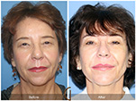 Orange County Facial Plastic Surgeon Facial Fat Grafting Surgery Patient Number #34