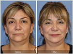 Orange County Facial Plastic Surgeon Facial Fat Grafting Surgery Patient Number #35