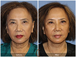 Orange County Facial Plastic Surgeon Facial Fat Grafting Surgery Patient Number #37