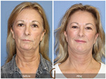 Orange County Facial Plastic Surgeon Facial Fat Grafting Surgery Patient Number #38