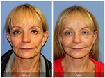 Orange County Facial Plastic Surgeon Facial Fat Grafting Surgery Patient Number #39