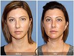 Orange County Facial Plastic Surgeon Facial Fat Grafting Surgery Patient Number #40
