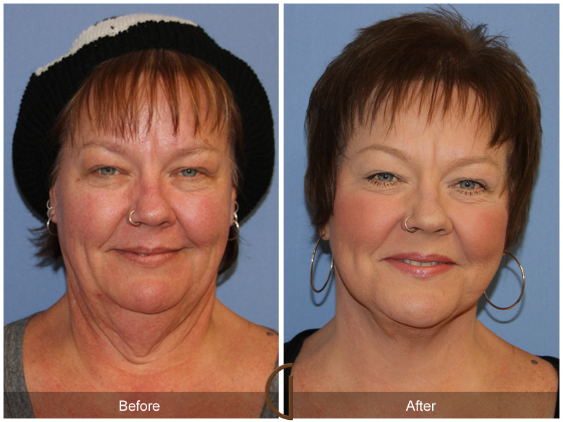 Orange County Facelift female patient in Newport Beach by Facial Plastic Surgeon Dr. Kevin Sadati. Dark hair with and without hat. This patient also performed neck lift and eye surgery