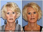 Orange County Facial Plastic Surgeon Facelift Revison Patient Number #2 Before and After Pictures.