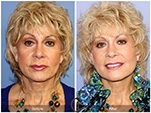 Orange County Facial Plastic Surgeon Facelift Revison Patient Number #3 Before and After Pictures.