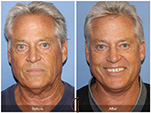 Orange County Facial Plastic Surgeon Facelift Revison Patient Number #4 Before and After Pictures.