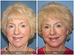 Orange County Facial Plastic Surgeon Facelift Revison Patient Number #5 Before and After Pictures.