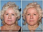Orange County Facial Plastic Surgeon Facelift Revison Patient Number #6 Before and After Pictures.