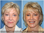 Orange County Facial Plastic Surgeon Facelift Revison Patient Number #7 Before and After Pictures.