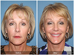 Orange County Facial Plastic Surgeon Facelift Revison Patient Number #9 Before and After Pictures.