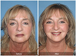 Orange County Facial Plastic Surgeon Facelift Revison Patient Number #10 Before and After Pictures.