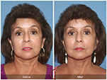 Orange County Facial Plastic Surgeon Facelift Revison Patient Number #11 Before and After Pictures.