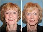 Orange County Facial Plastic Surgeon Facelift Revison Patient Number #12 Before and After Pictures.