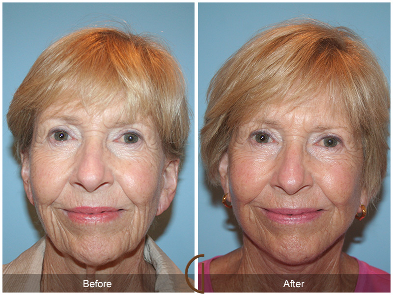 Orange County Facial Plastic Surgeon Facelift Revison Patient Number #13 Before and After Pictures.