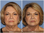 Orange County Facial Plastic Surgeon Facelift Revison Patient Number #14 Before and After Pictures.