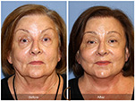 Orange County Facial Plastic Surgeon Facelift Revison Patient Number #16 Before and After Pictures.